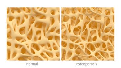 Photo of Osteoporóza číha aj na vaše kosti