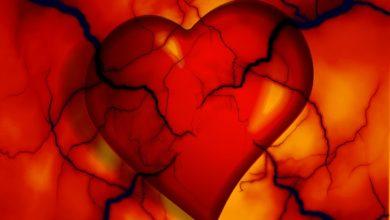 srdcovo-cievne ochorenia