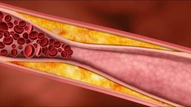 Photo of Ateroskleróza môže spôsobiť veľké problémy